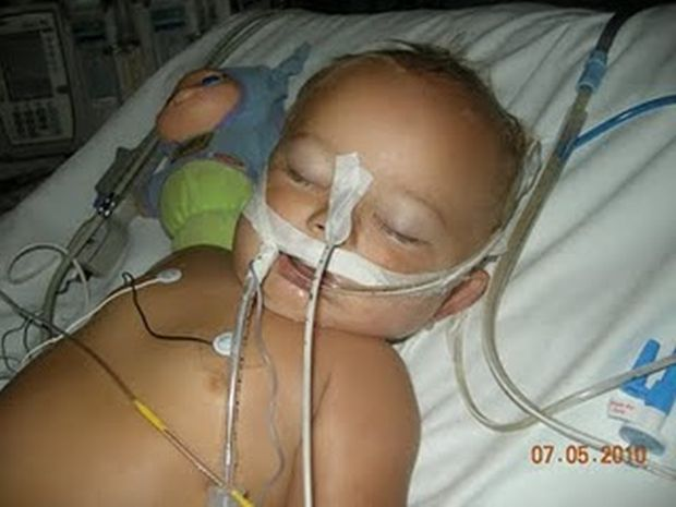 Baby Kash aged 14 Months, One Day After Vaccine Reaction to MMR